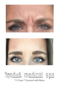 Botox Before and After for 11s