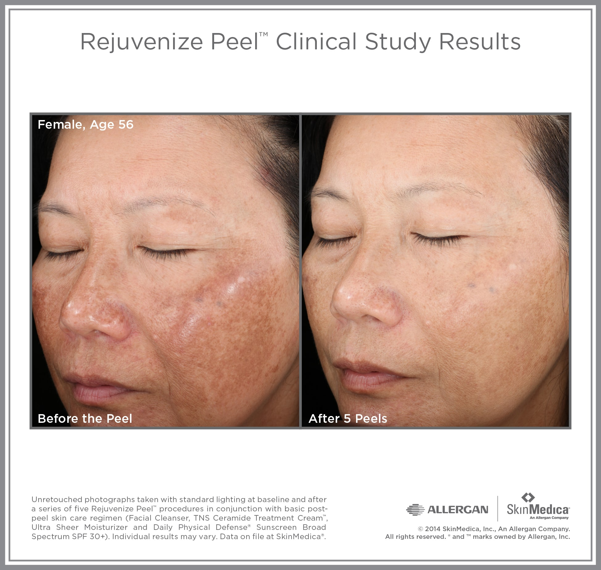 facial Peel Female Age 56