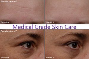 Spa Medical Grade Skin Care