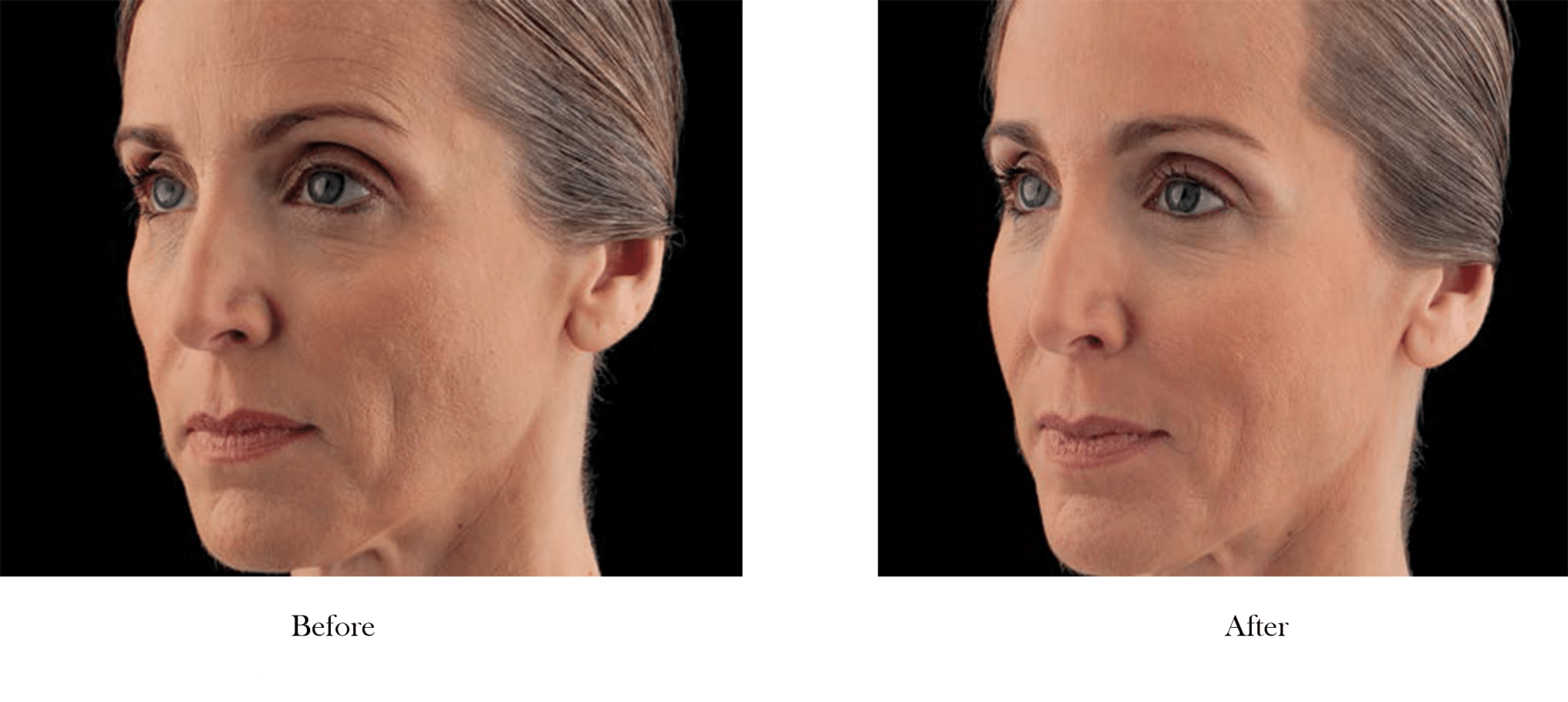 Before and After Filler Results