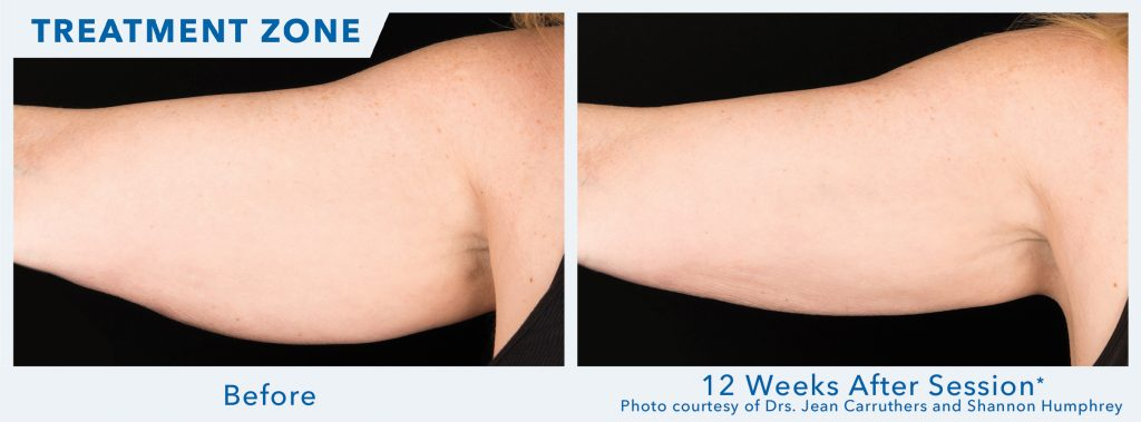 Coolsculpt Before After Female Arms