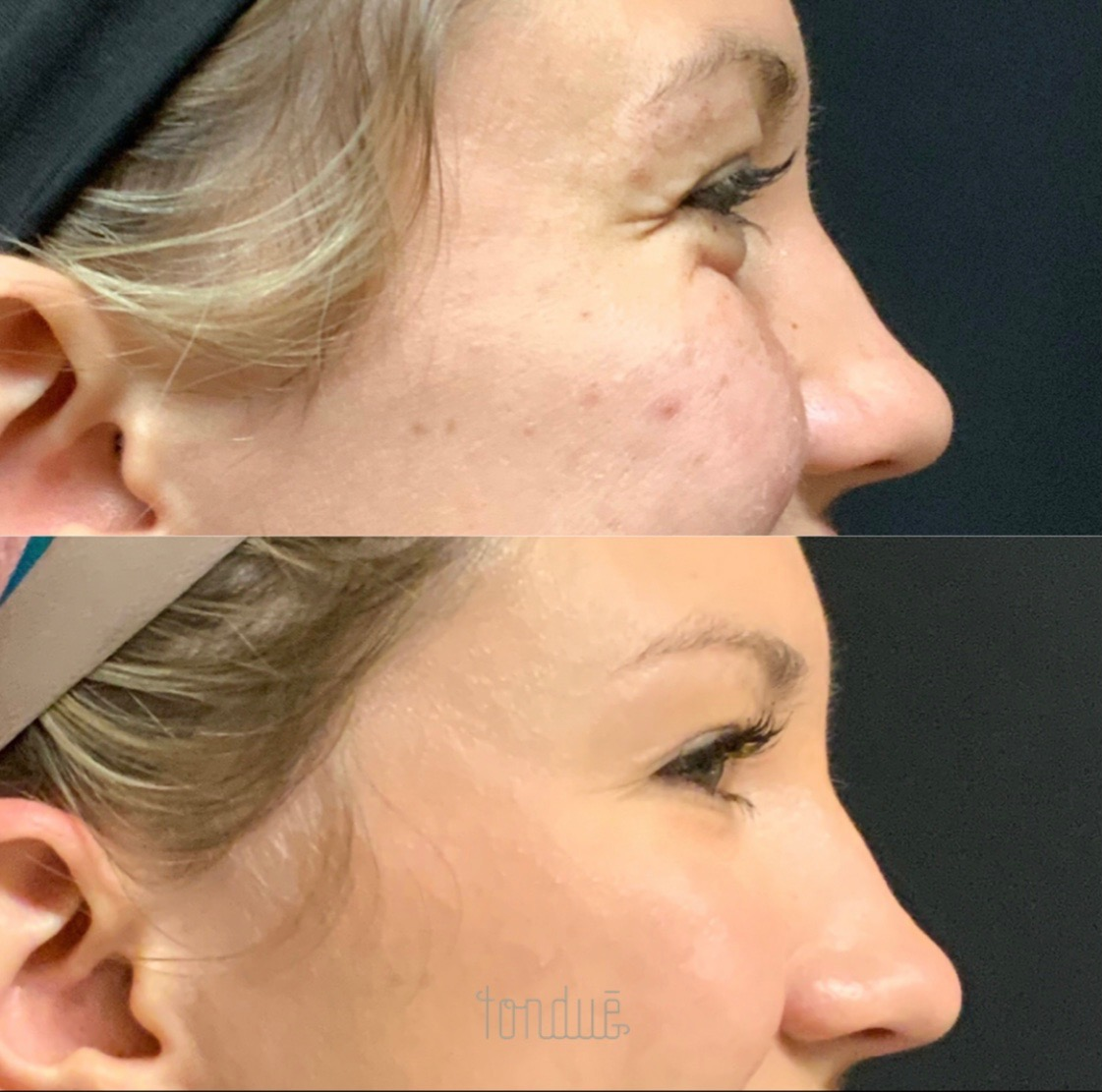 Botox Before & After