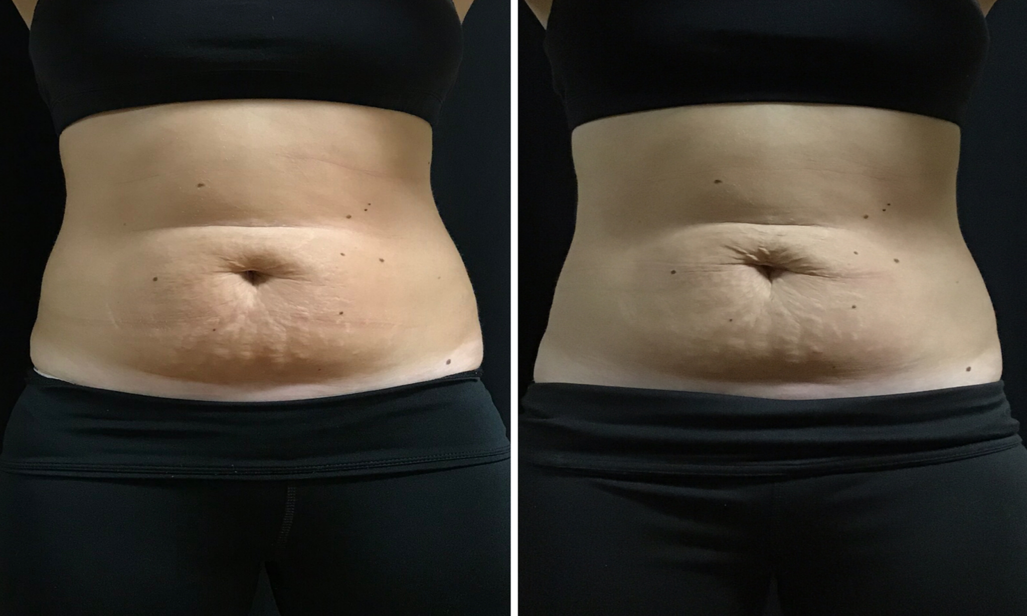 Coolsculpt Before and after Female Abs