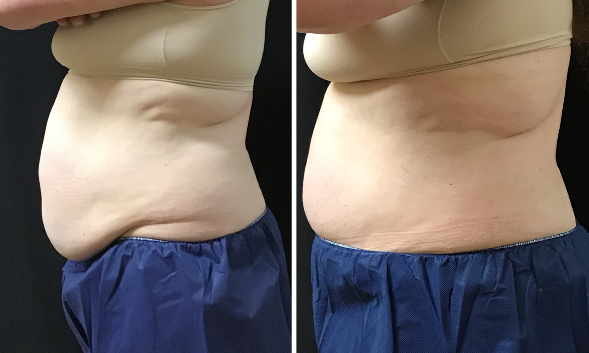 Coolsculpting Before and After Male Abs