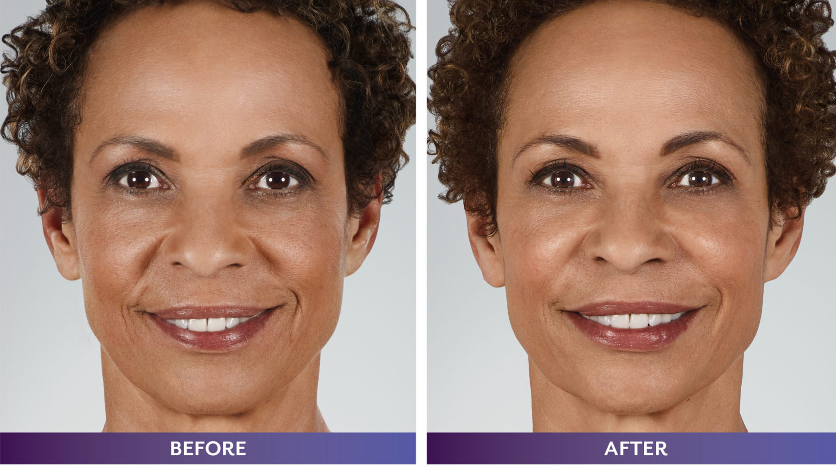 Before & After Filler Michele