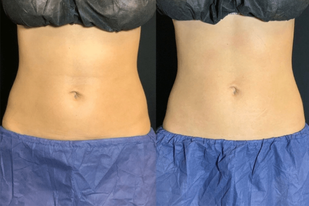CoolTone Before and After - Female Abdomen