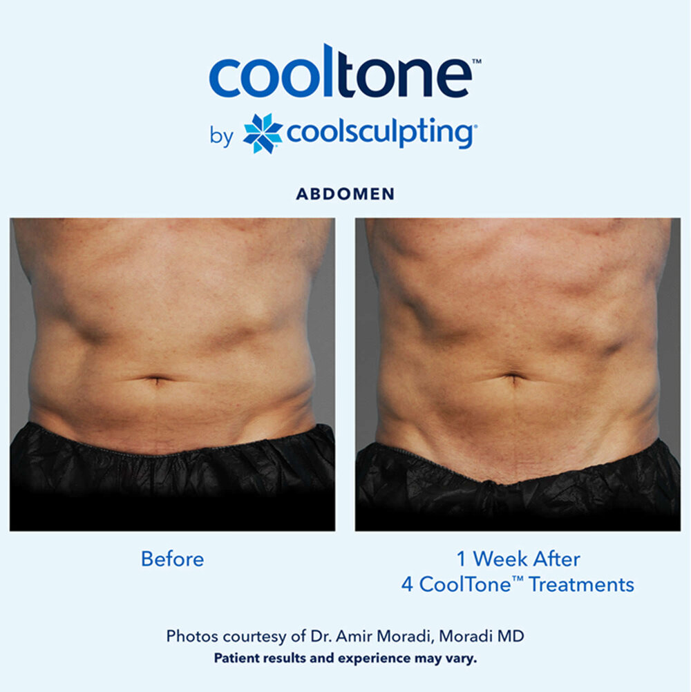 CoolTone Before After Male